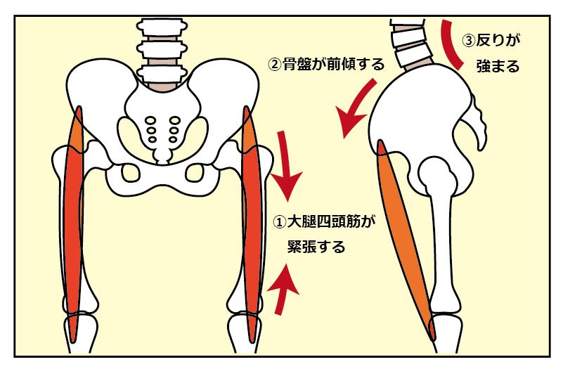 骨盤の前傾と大腿四頭筋の関係